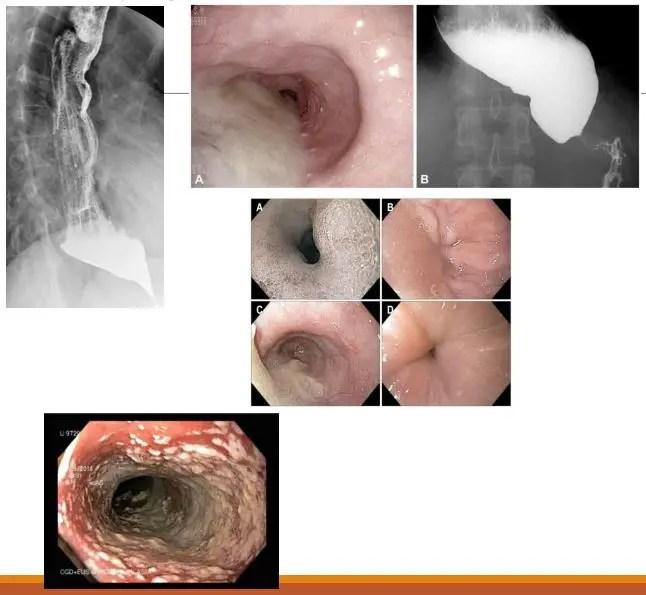 диагностика брюшной полости el paso tx.
