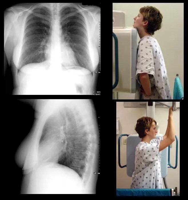 диагностика грудной клетки el paso tx.