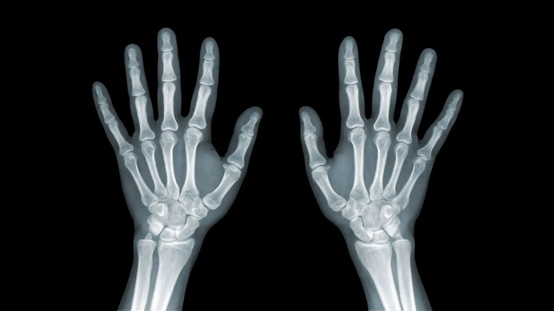 Csont a nagy lábujjnál: otthoni kezelés - Fej July