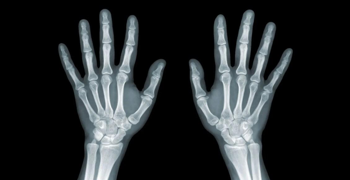 pergelangan tangan pencitraan diagnostik el paso tx.