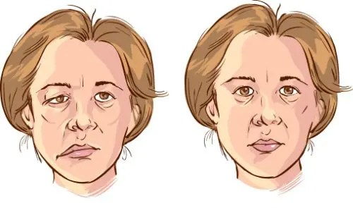 bells palsy injury medical and chiropractic clinic treatment el paso tx.