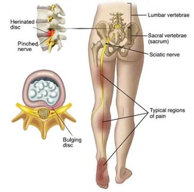 Dolor en la parte baja de la espalda y abajo del muslo derecho