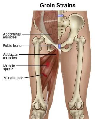 dolor muscular aductor cerca de la ingle
