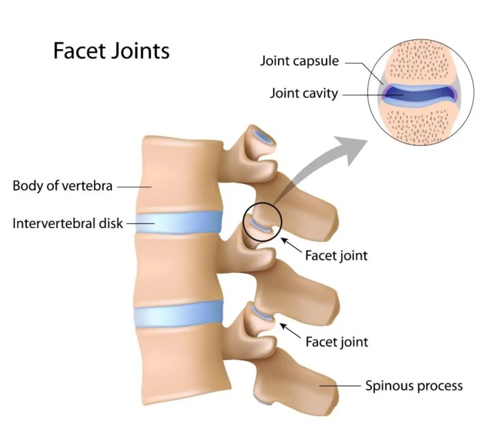 facet arthropathy diagram | El Paso, TX Chiropractor