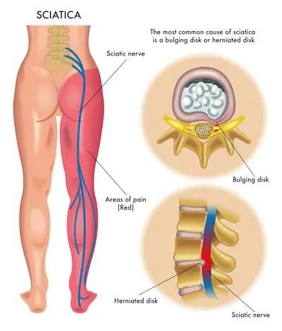 radiculopathy diagram | El Paso, TX Chiropractor
