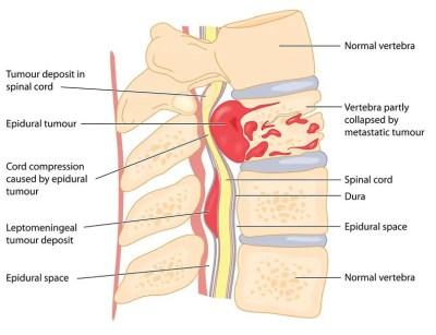 spinal tumor diagram   El Paso, TX Chiropractor