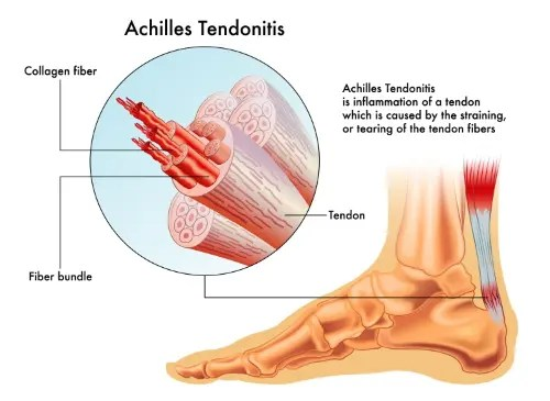 11860 Vista Del Sol, Ste. 128 Find Relief From Achilles Tendonitis Using Chiropractic El Paso, TX.