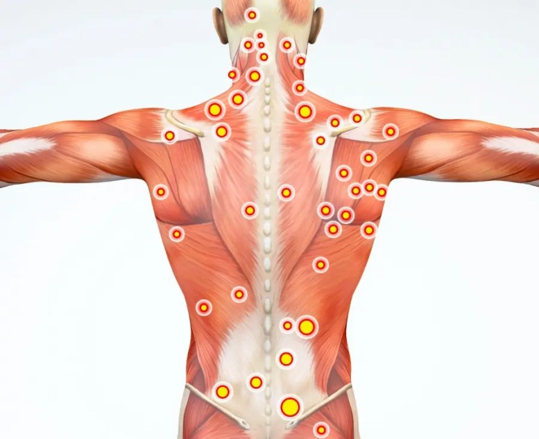11860 Vista Del Sol, Ste. 128 Spine Muscle Pain and Myofascial Syndrome El Paso, TX.