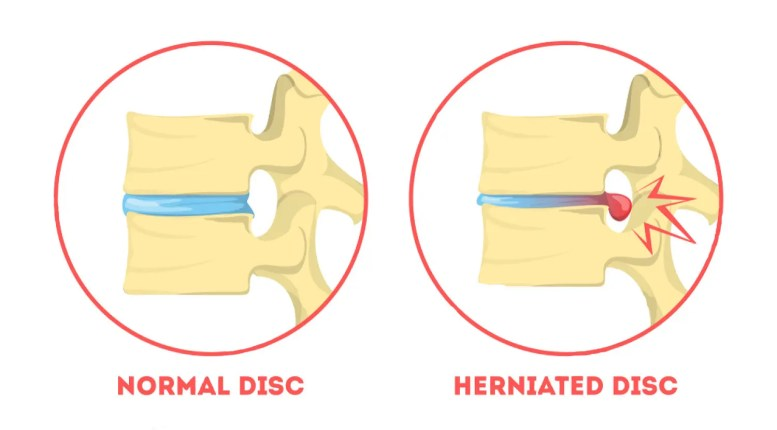 11860 Vista Del Sol, Ste. 128 Nervous About Chiropractic Care for Herniated Disc El Paso, TX.