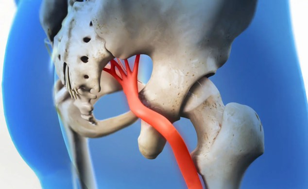 11860 Vista Del Sol, Ste. 128 Sciatica Chiropractic Diagnosis Specialist and Abdominal Aortic Aneurysm