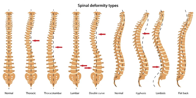 dolore allinguine dopo fusione spinale
