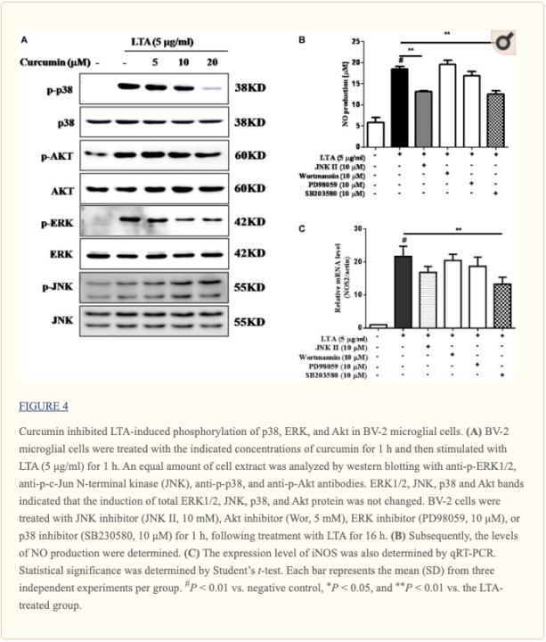 Figura 4 Fosforilación inducida por LTA inhibida por curcumina | El Paso, TX Quiropráctico