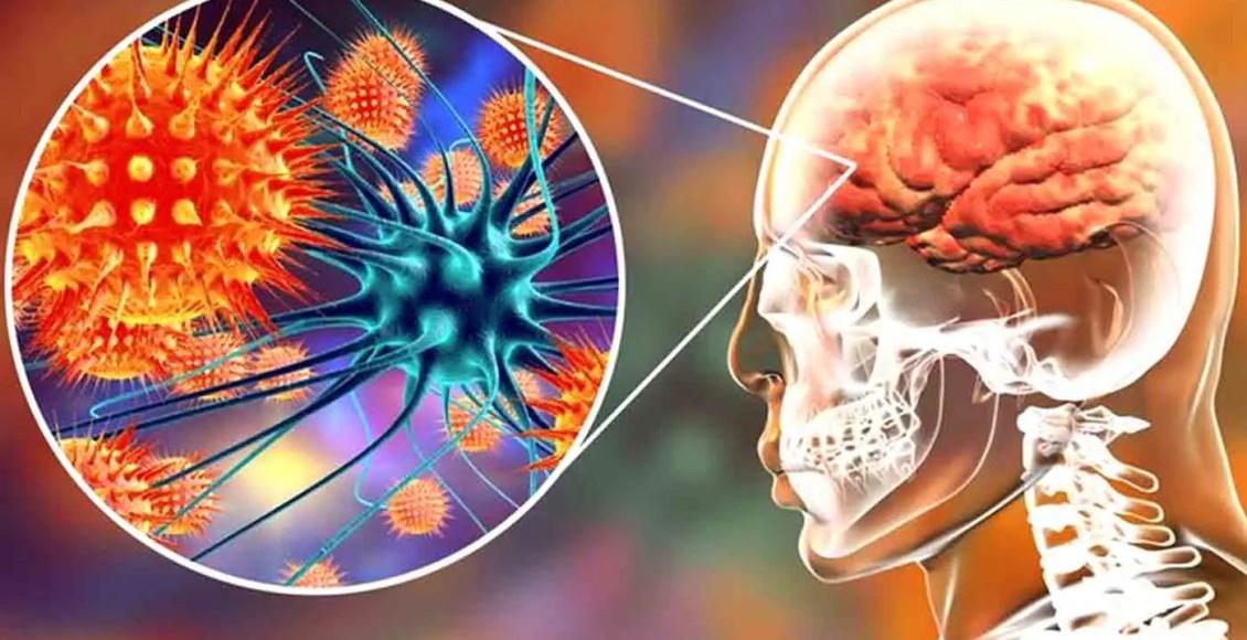 Neurología funcional: comprensión de la enfermedad cerebral autoinmune Publicación de blog | El Paso, TX Quiropráctico