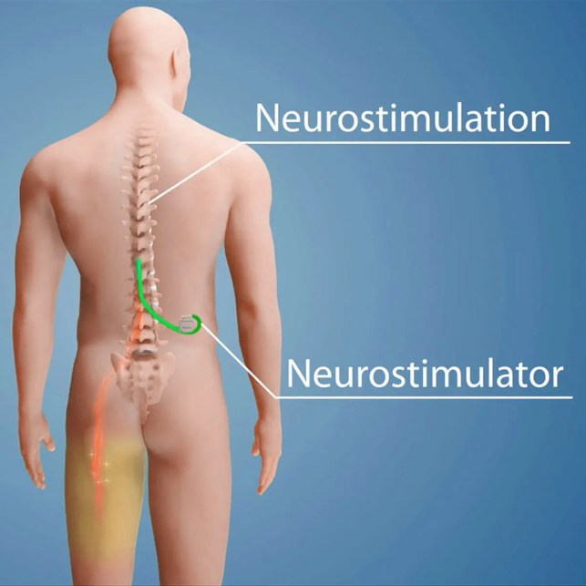 11860 Vista Del Sol, Ste. 128 Spinal Stimulation and Chronic Back Pain