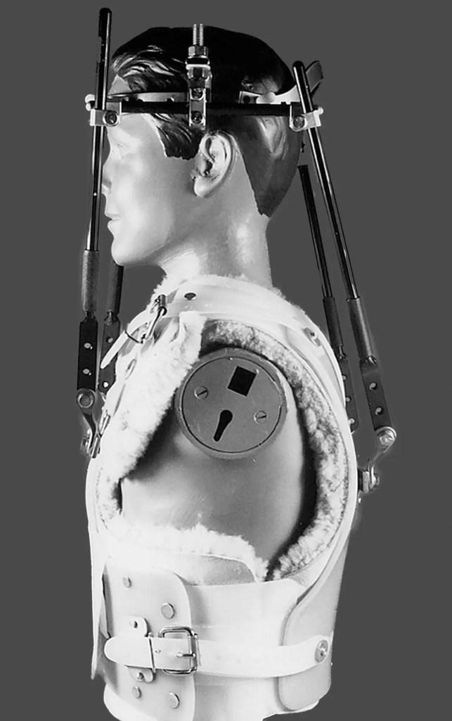 11860 Vista del Sol, Ste. 128 aparatos ortopédicos, collares cervicales: tipos de refuerzos espinales