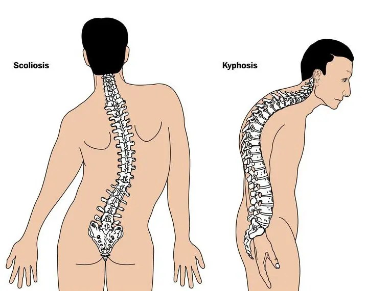 11860 Vista Del Sol, Ste. 128 Thoracic Spine - Middle Back Basics