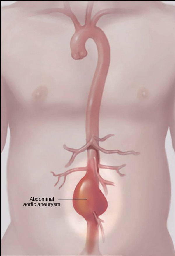 11860 Vista Del Sol, Ste. 128 Sciatica and Low Back Pain Could Be Abdominal Aneurysm