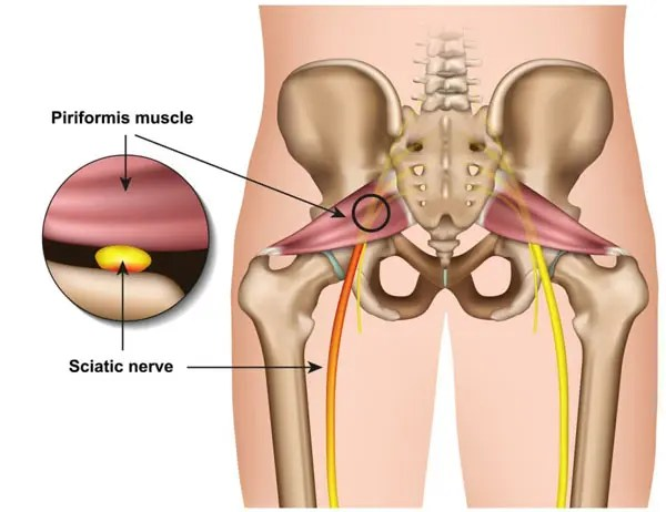 11860 Vista Del Sol, Ste. 128 Testing For Piriformis Syndrome or Sciatica through Chiropractic