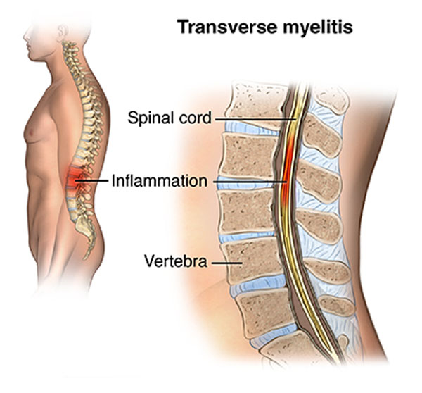 11860 Vista Del Sol, Ste. 128 Transverse Myelitis Rare Spinal Cord Disorder Possible Cause Covid-19