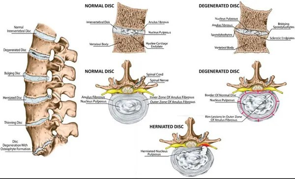 11860 Vista Del Sol, Ste. 128 Chiropractic Prevention and Relief For Degenerative Disc Disease