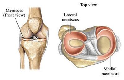 Meniscus Tear & Meniscectomy | Arthroscopic Surgeon in ...