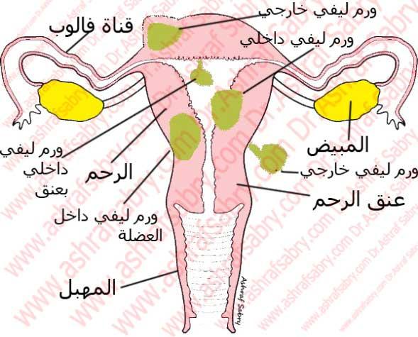 الاورام الليفية الرحمية