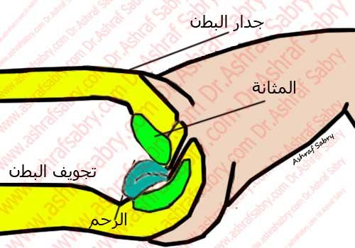 وضعية الرحم المائلة للخلف