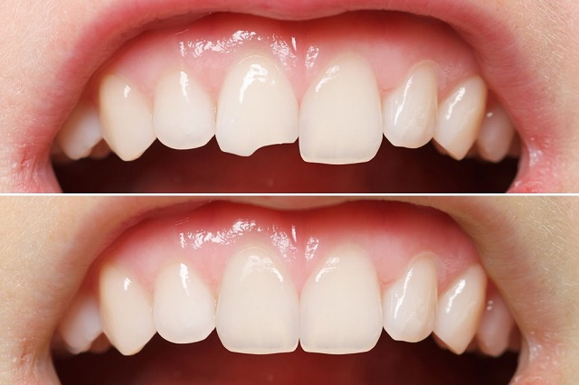 I Chipped My Tooth – Now What?? | Brampton Dentist | Dr ...