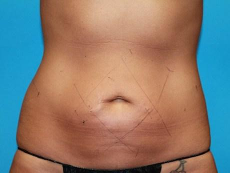 coolsculpting belly bulge before
