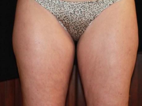 inner thigh coolsculpting before