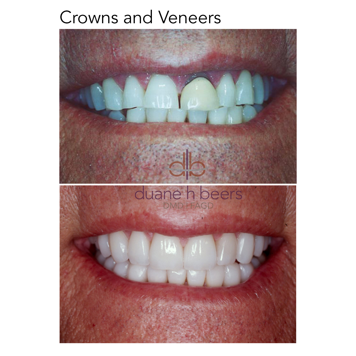 Crowns or veneers 31