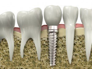 Dental Implant in Socorro, New Mexico