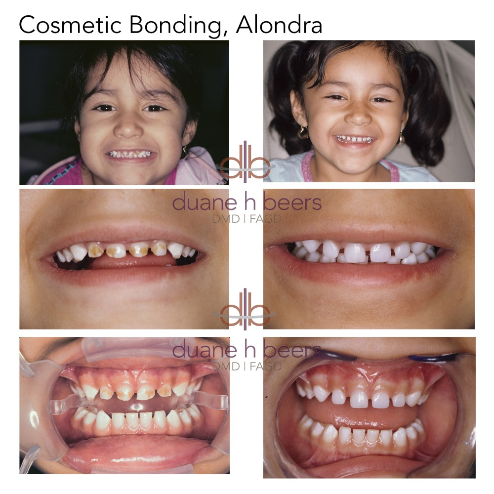 Cosmetic Bonding, Alondra