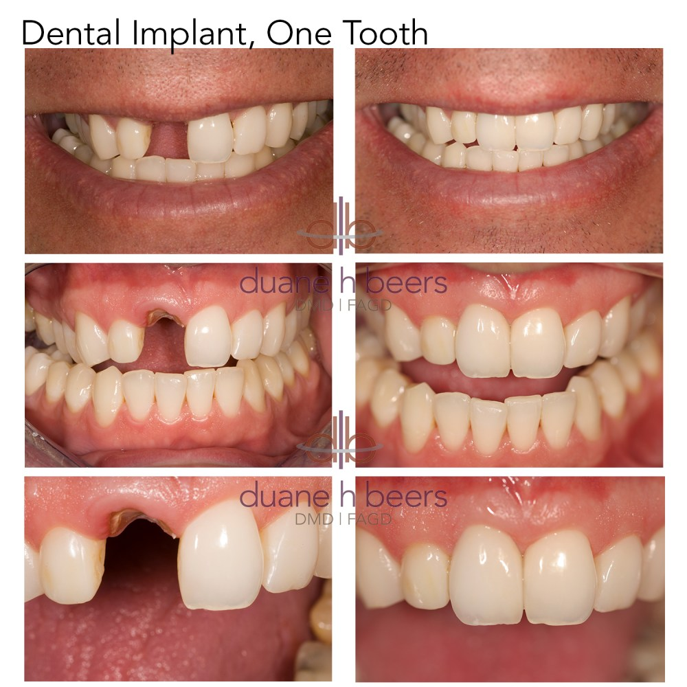 Dental Implant, Single Tooth