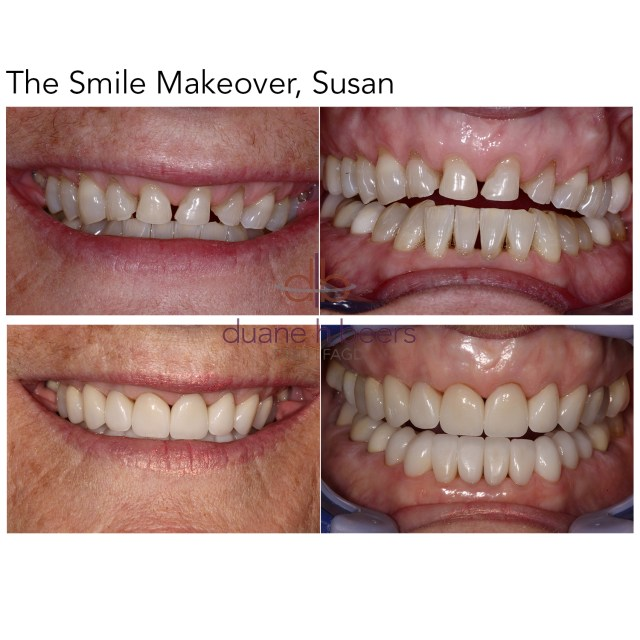 Smile Makeover, Susan