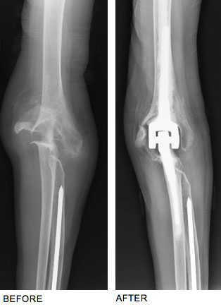 Dr, injuries or severe infections can lead to painful stiff knees that can prevent daily functional movements and activities, Steinberg Performs Total Elbow Joint Replacement to ...