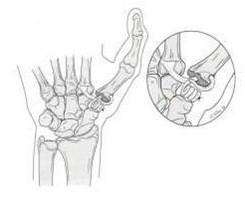 Jacksonville, Florida, Orthopaedic Surgeon, Rotator Cuff
