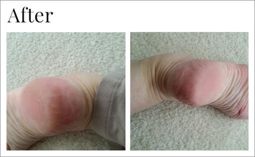 After using Dr. Canuso foot repair serum