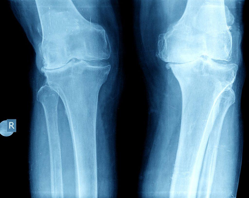 X Rays Vs Mris Do I Really Need X Rays