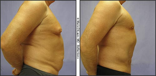 Before-After-male-chest-stomach-Marie-DiLauro-MD-614-885-3500