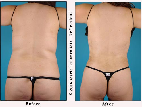 liposuction to stomach-waist-butt