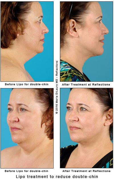 Liposuction-Cost Photos Results-Laser-Vaser-Lipo-Worthington-OH
