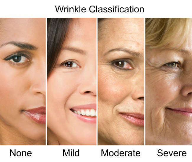 Face wrinkle classification
