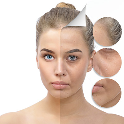 facetite, necktite, skinradiant, photofacial, lines, wrinkles, crowsfeet, facelift