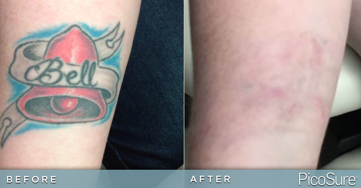 Blank Slate Tattoo Removal