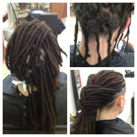 hair loss with micro braids micro braids and alopecia ...