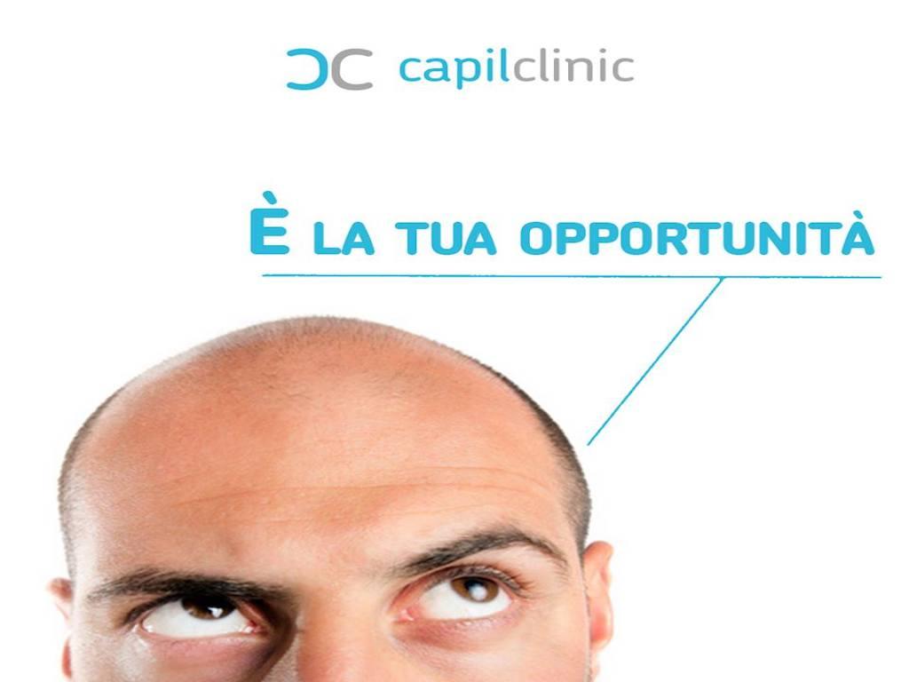 CapilClinic: trapianto di capelli in Turchia come funziona