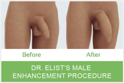 Penile Enlargement Procedure, penile enlargement experience, before after photo