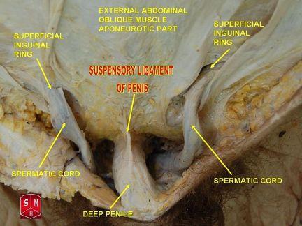 Suspensory Ligament Release