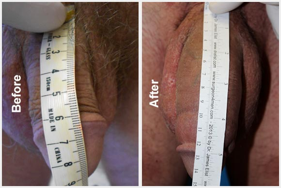 Elist Implant Before After Photo